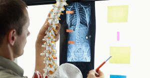 Scoliosis Treatment Options