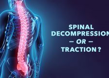 Is Spinal Decompression the Same as Traction?